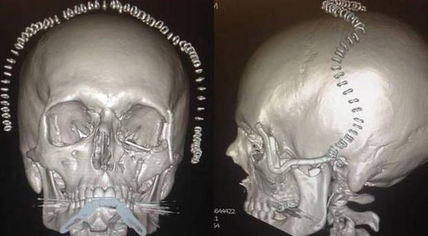 הדפיסו את החלקים שעוותו במהלך התאונה
