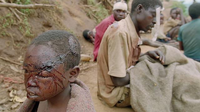 פליטים פצועים במחנה קיבהו. 1995 (צילום: AFP) (צילום: AFP)