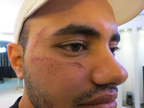 Moussa Abu Iyad after the attack (Photo: Hassan Shaalan)  (Photo: Hassan Shaalan)