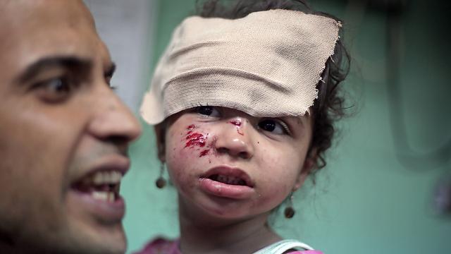 ילדה שנפגעה בתקיפה (צילום: AP) (צילום: AP)