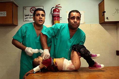 המראות שמהם חששו בזירה המשפטית. ילדה פלסטינית פצועה בעזה (צילום: MCT) (צילום: MCT)