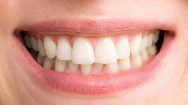 לשמור על בריאות הפה. תחזוקה נכונה (צילום: shutterstock) (צילום: shutterstock)