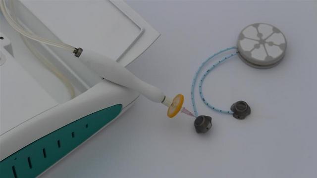תאי הלבלב הצליחו לשרוד בזכות המכשיר. פוטר מהצורך להזריק אינסולין. BetaO2 (צילום: BetaO2) (צילום: BetaO2)