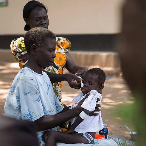 בת שנתיים הסובלת מתת תזונה - סכנה נוספת לילדי דרום סודן (צילום: AFP) (צילום: AFP)