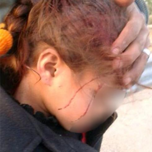 The wounded girl (Photo: B'Tselem)