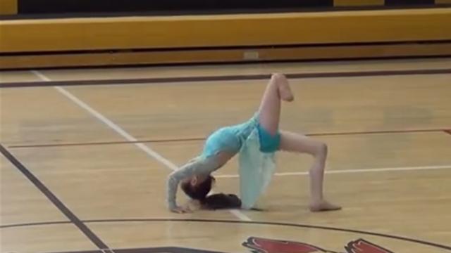 ממשיכה לרקוד גם בלי הרגל. אליסה בת 7 ( ) ( )