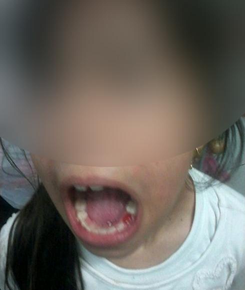 איומים, אגרוף וסטירה. הילדה שהותקפה ()