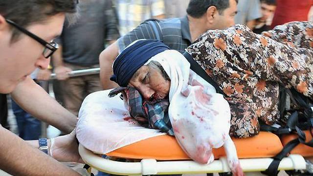 A Kurdish woman wounded in Kobani. (Photo: AP) (Photo: AP)