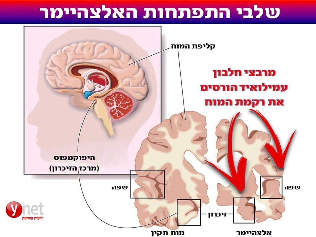 הגלוטן הוא רוצח אכזרי ביותר שגורם למחלות אלציהימר דמנציה סרטן ועוד  618471609901001023767no