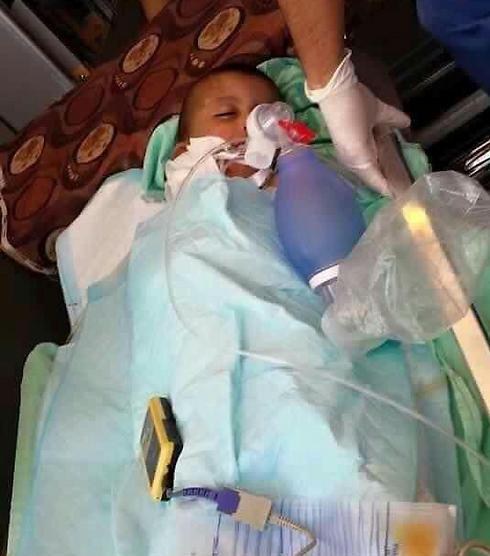הילד בן ה-4 שנפצע בהצתה ()