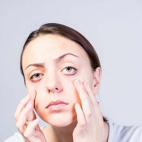 הרכיבים בגוג' ברי תורמים בשמירה על בריאות העיניים (צילום: shutterstock) (צילום: shutterstock)
