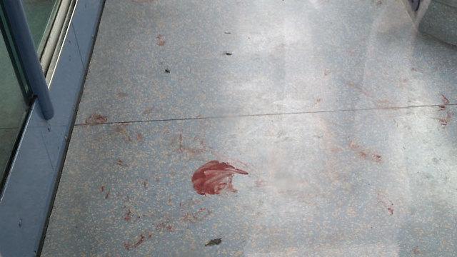 Blood on the floor left by the light rail attack (Photo: Eli Mandelbaum)