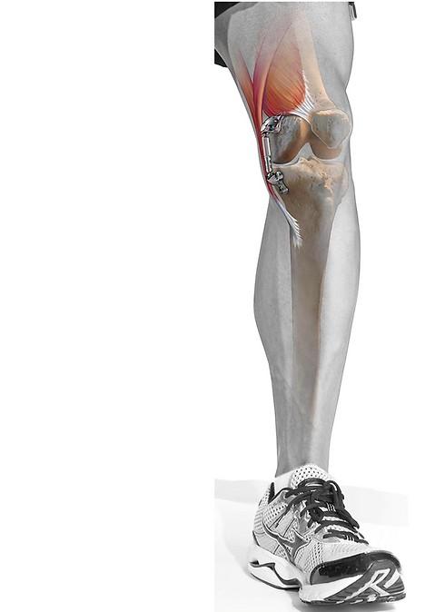 המתקן שיסייע להפחית את העומס על המפרקים ( ) ( )