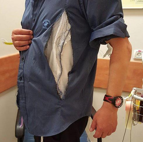החולצה שנקרעה במהלך הקטטה בבית הכנסת