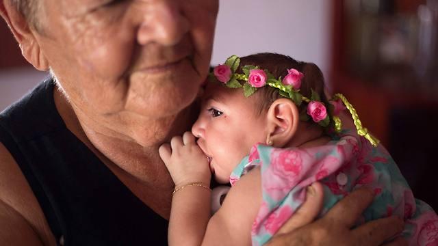 התינוקת אנה ביאטריס הסובלת ממיקרוצפליה (צילום: EPA)