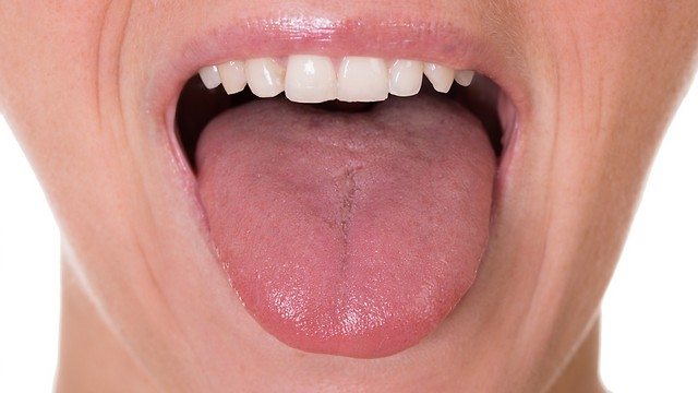 יובש בפה ושינויים בטעם. בגלל הצום (צילום: shutterstock) (צילום: shutterstock)