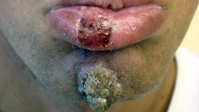 נגעי העור עלולים להישאר במשך חודשים (צילום: פרופ' אלי שוורץ) (צילום: פרופ' אלי שוורץ)