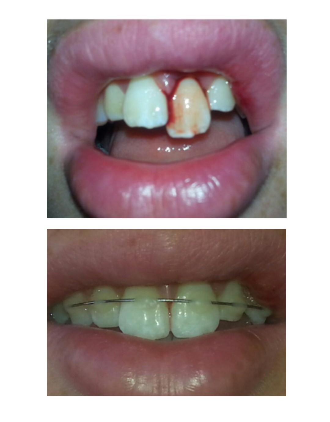 שן קבועה שיצאה מהמכתשית ( ) ( )