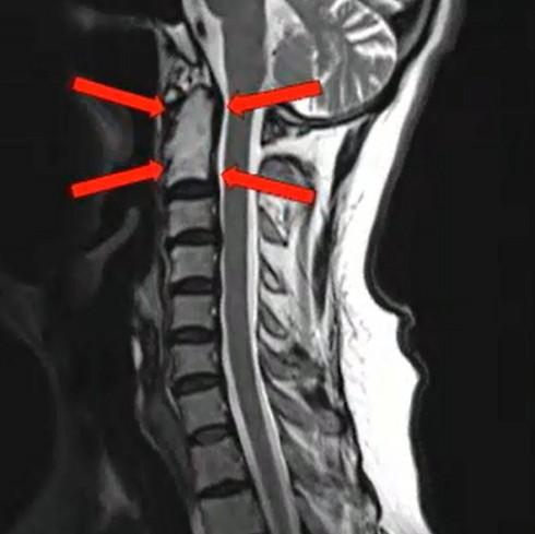 הגידול בעמוד השדרה ( ) ( )