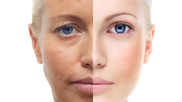 שלוש דרגות של עומק. מקלפים את העור הישן ונותנים לחדש וצעיר לצמוח (צילום: shutterstock) (צילום: shutterstock)
