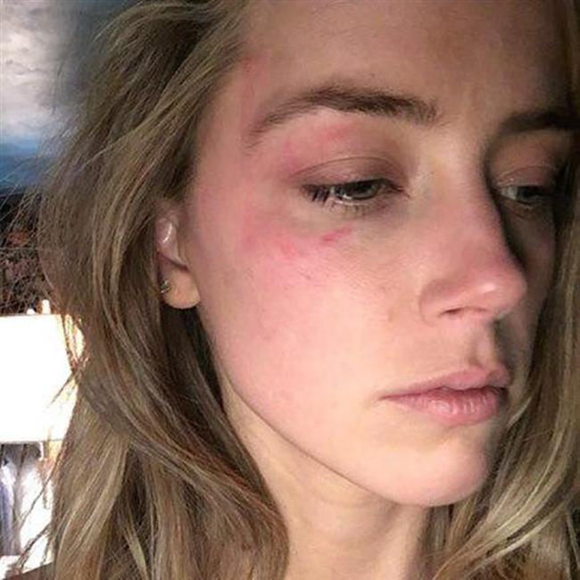 אמבר הרד עם חבלות על פניה (צילום מסך)