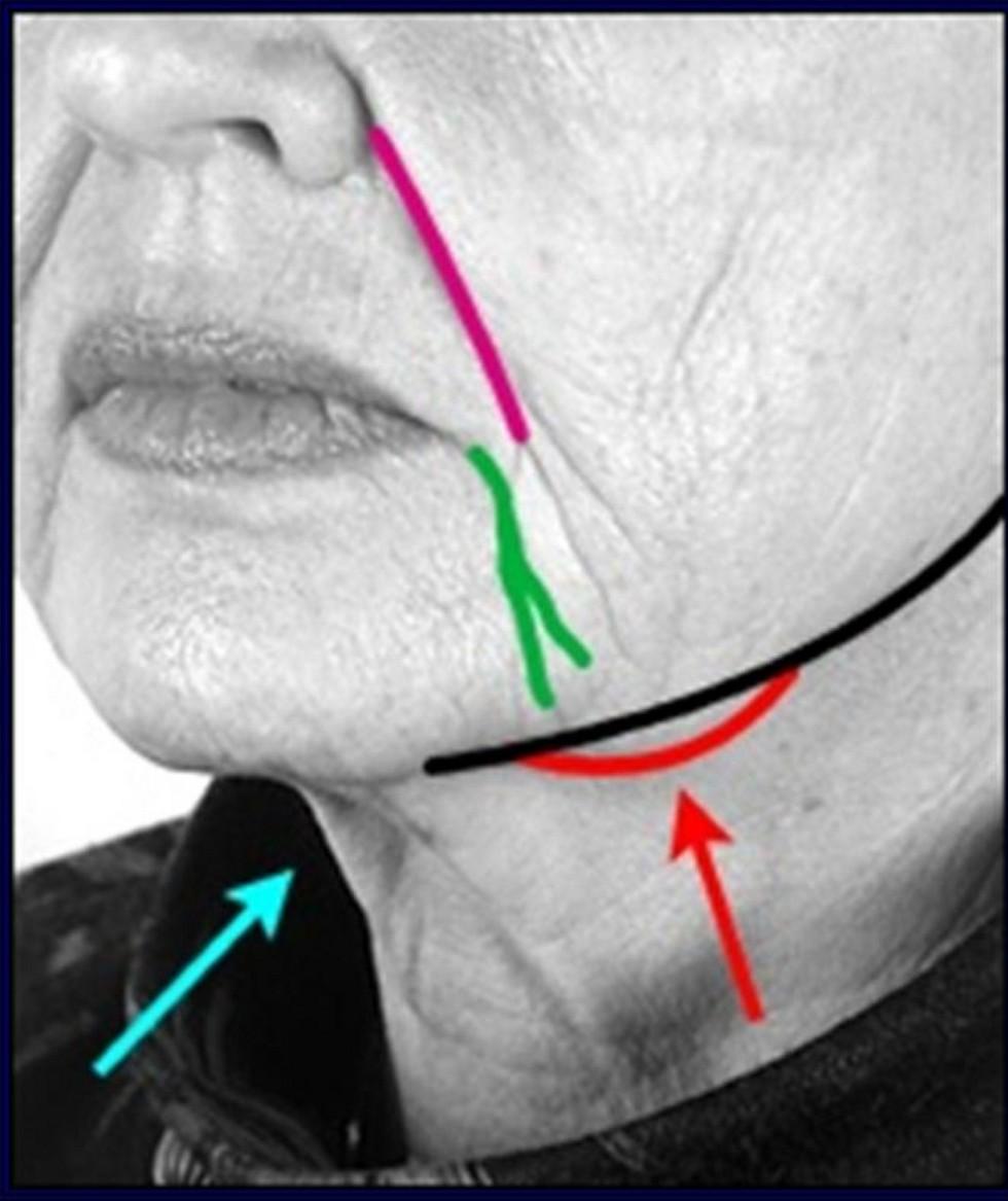 מרימים את העור ומחדירים תאי שומן ( ) ( )