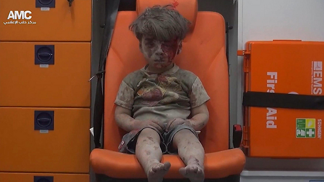 Wounded child in Aleppo (Photo: AP)