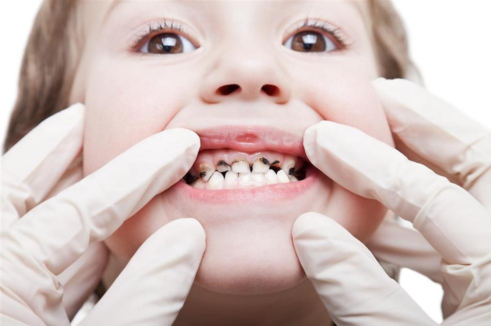 עששת. נזק לשיניים של הילדים (צילום: shutterstock) (צילום: shutterstock)