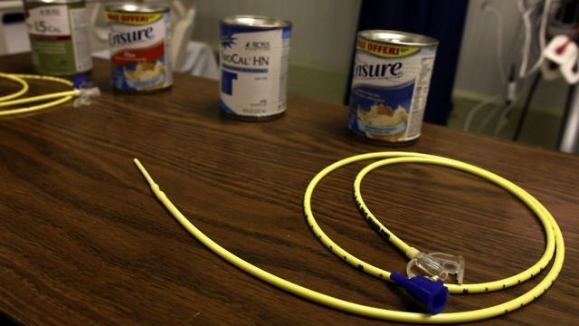 A feeding tube used to force-feed prisoners (Photo: AP)