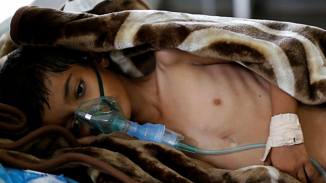 A child suffers from malnurishment in Yemen (Photo: Reuters)