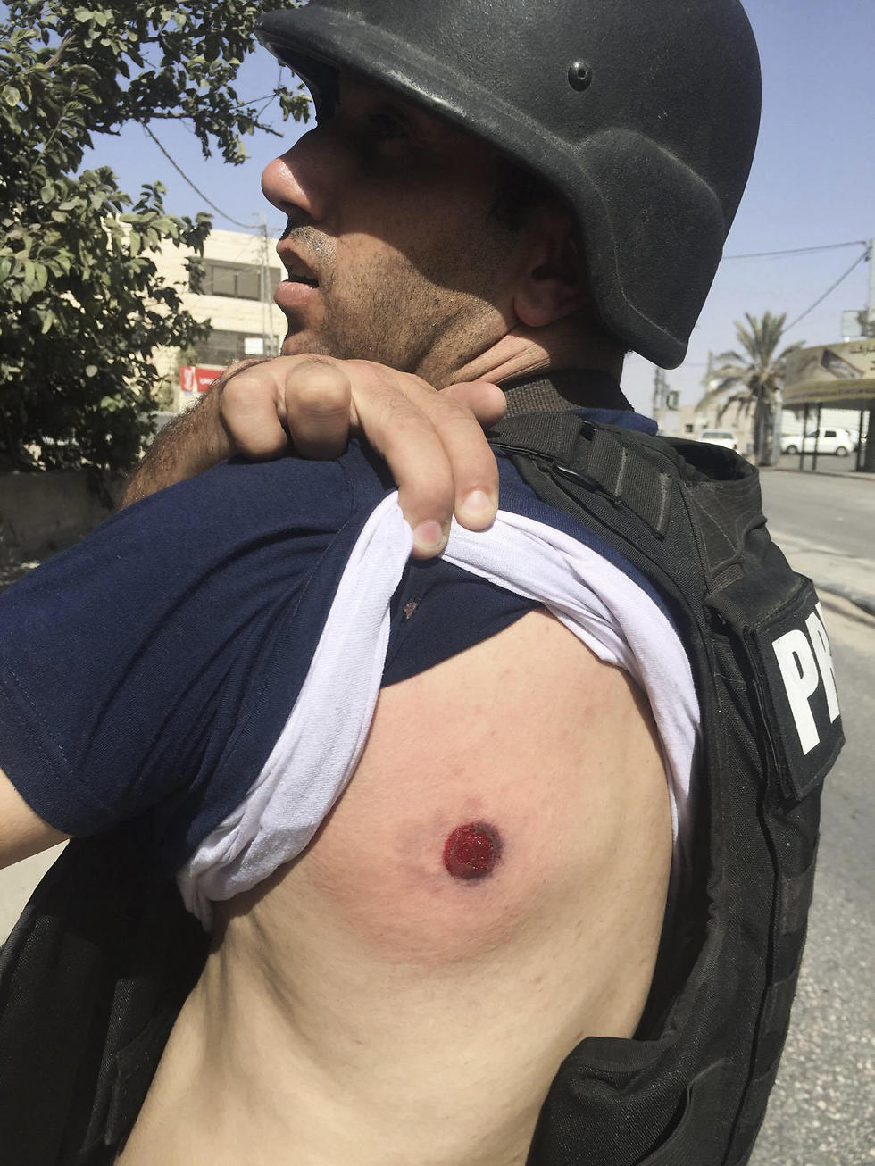 The AP reporter hit by a rubber bullet (Photo: AP)