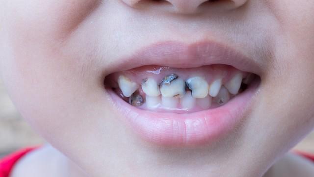 למנוע היווצרות עששת. שמירה על ברייאות השיניים (צילום: shuutterstock)