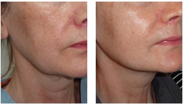 מימין: אחרי הטיפול בחוטים להעלמת קמטים בצוואר. חוטי APTOS ( )