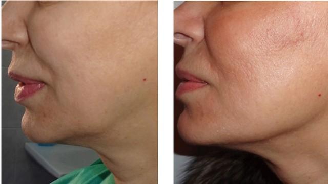 מימין: אחרי הטיפול בחוטים. התוצאות נשמרות אפילו עד שנתיים ( )