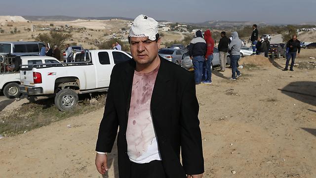 """ח""""כ איימן עודה במהלך הארועים באום אל-חיראן (צילום: AFP) (צילום: AFP)"""
