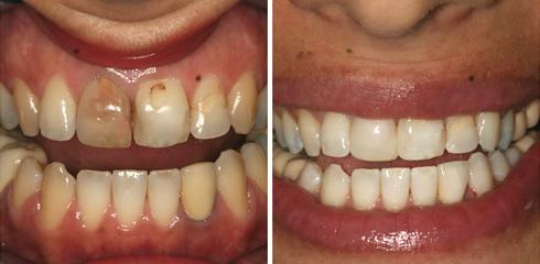 הלבנת שן בודדת (צילום: באדיבות מרפאת יודנטל ד״ר אילן פרייס)