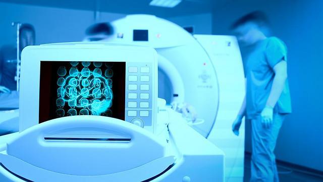 בדיקת MRI  - חשפה את הנזקים הנוירולוגיים במוח (צילום: shutterstock) (צילום: shutterstock)