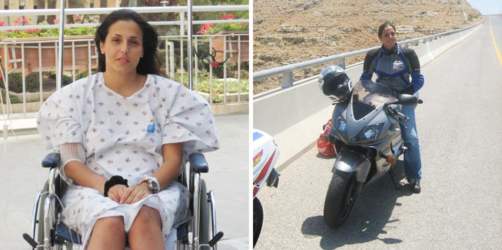 """שמש על האופנוע (מימין) ואחרי תאונת הדרכים. """"אמא שלי שאלה את אחד הרופאים אם אצליח להביא ילדים. הוא לא ידע לתת תשובה"""" (צילום: דידי גניש, אלבום פרטי)"""