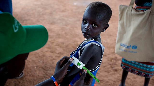 A child is checked for malnutrition in South Sudan (Photo: AP)