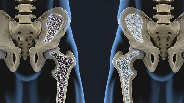 אוסטיאופורוזיס: איבוד מסת העצם הפוגע במבנה השלד ובחוזקו (צילום: shutterstock) (צילום: shutterstock)
