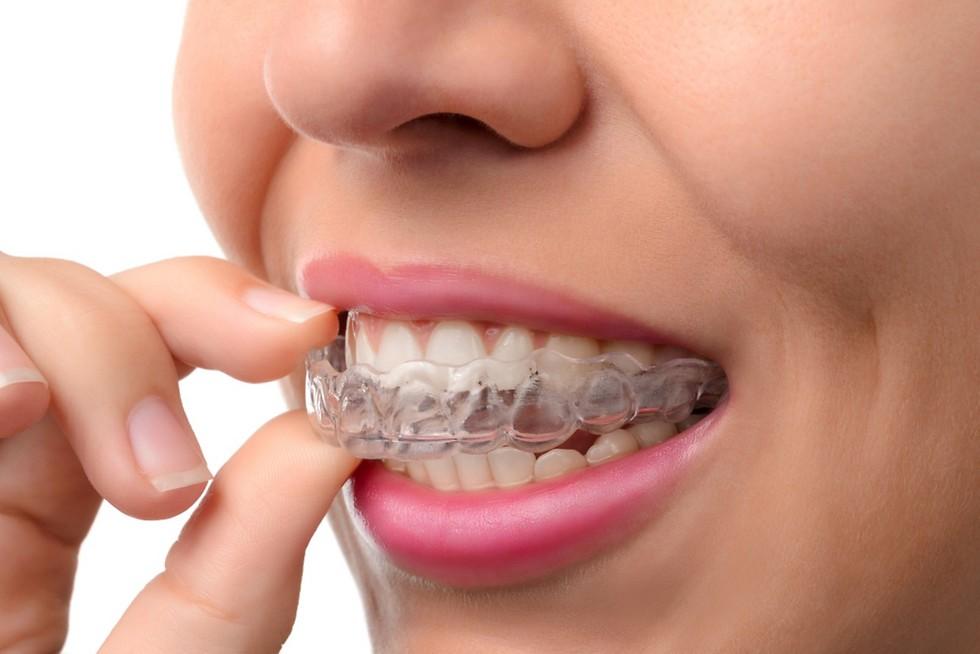 לבחור את השיטה הכי מתאימה. יישור שיניים (צילום: shutterstock)