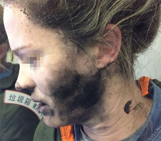הצעירה שנפגעה (צילום מסך)