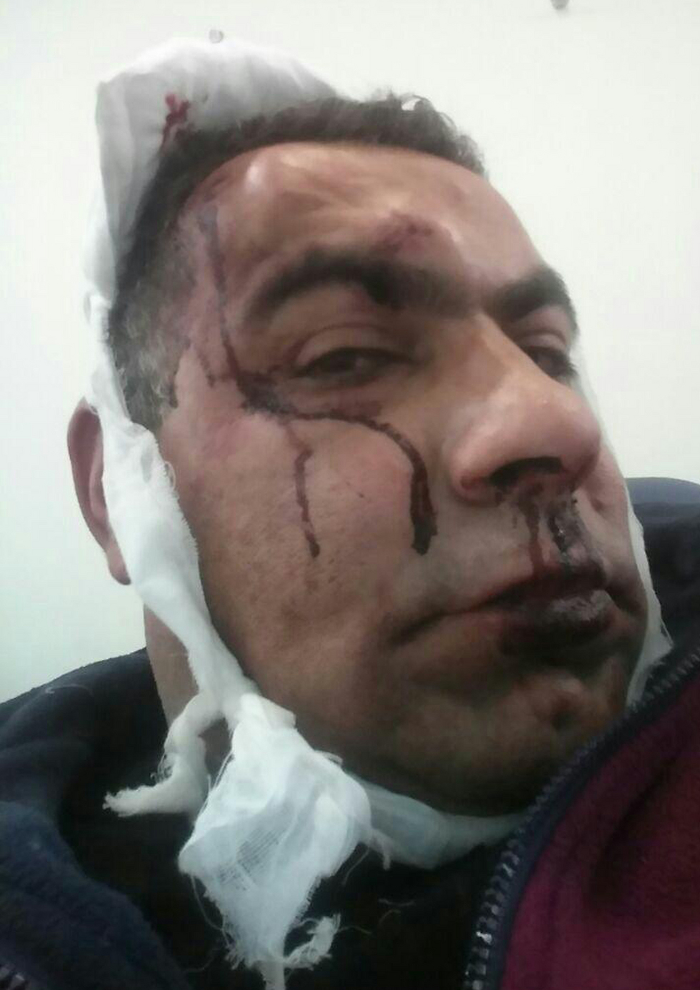 Fadi Abed after the attack