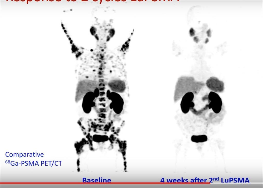 גידולים סרטניים בערמונית, לפני (משמאל) ואחרי טיפול בלוציטיום