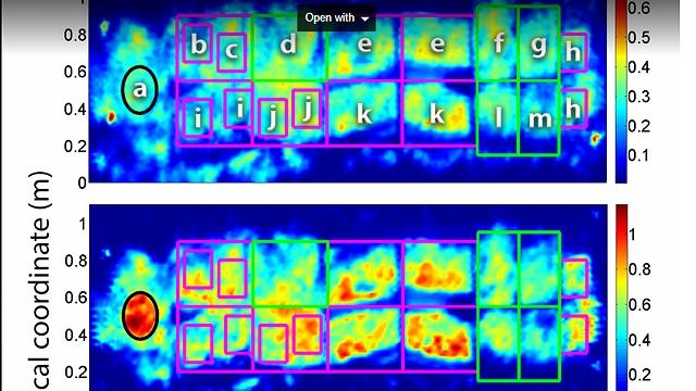 Сигнал бактерий принимают сенсоры. Фото: Еврейский университет