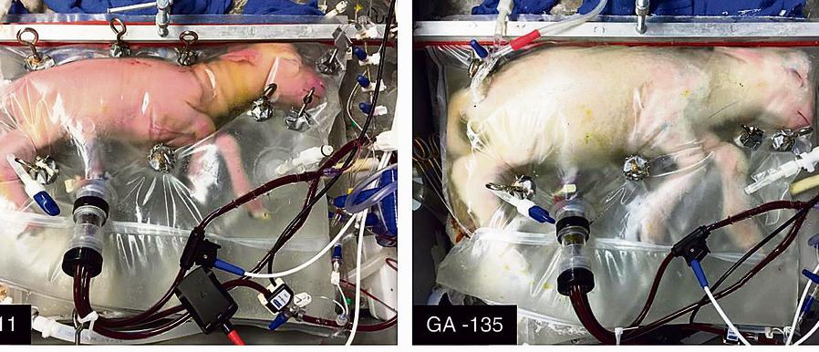 משמאל: כבשה לאחר ארבעה ימים בתוך הרחם המלאכותי. מימין: אותה כבשה ביום ה־ 28 | צילום: אי־פי־אי