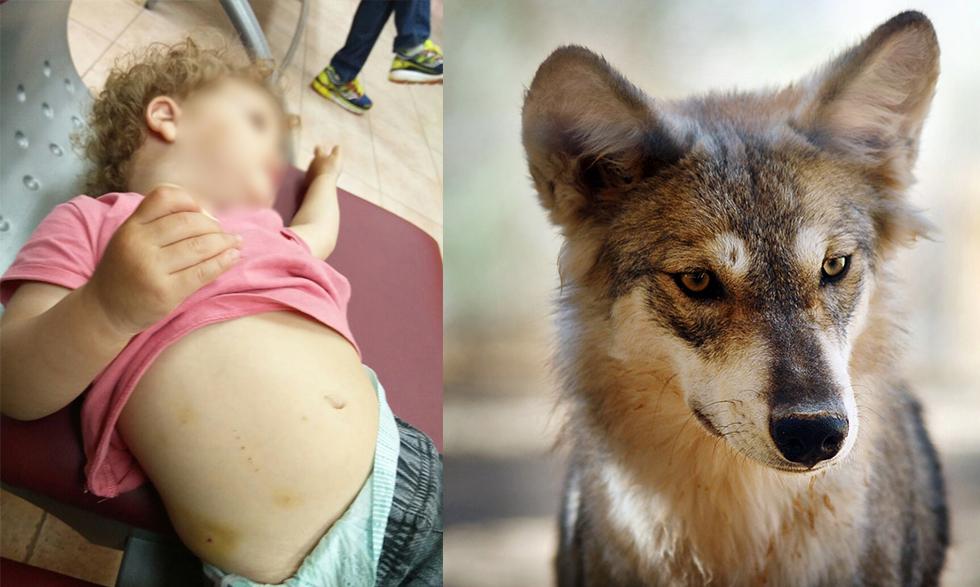 זאב (צילום אילוסטרציה) והילדה שננשכה (צילום: shutterstock) (צילום: shutterstock)