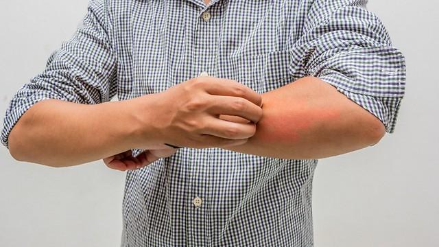 פצעים מגרדים ומכאיבים. אימפטיגו (צילום: shutterstock)