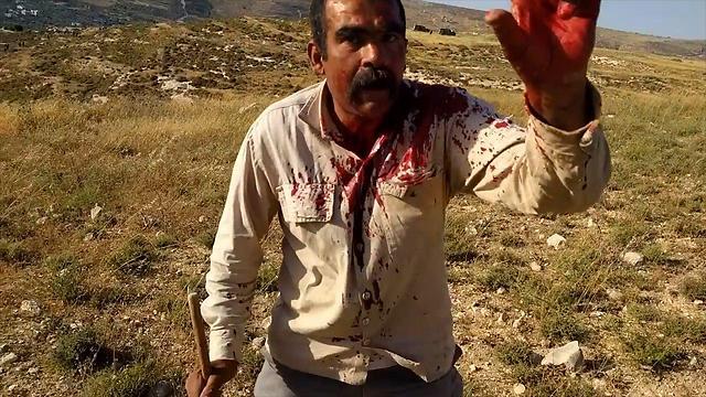 Palestinian struck by a rock