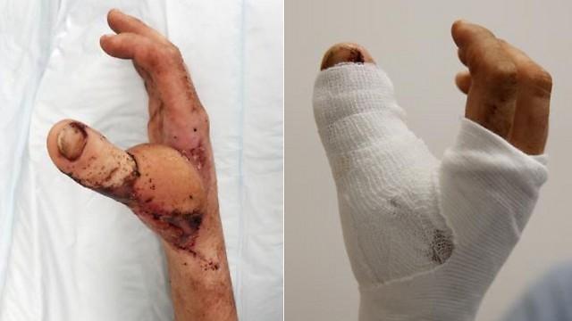 כמעט כמו חדשה. כף ידו של מיטשל אחרי ההשתלה (צילום: Toby Zerna)